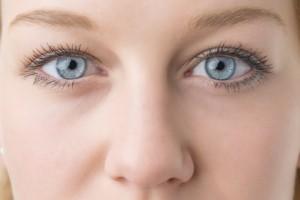 Nasolabialfalten mit Hyaluronsäure behandeln