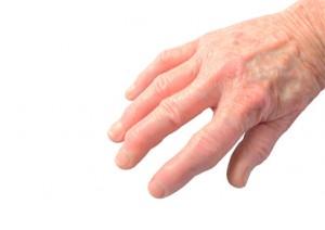 fingerendgelenksarthrose-hyaluronwelt