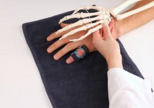 fingergelenksarthrose-polyarthrose-hyaluronwelt