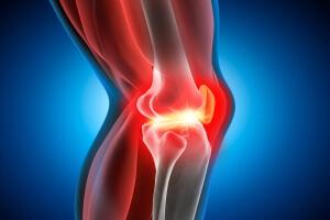 Hyaluronsäure-Injektion bei Kniearthrose