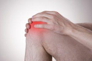 Arthrose Anzeichen & Symptome