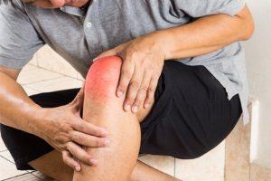 Unterschied Arthrose und Arthritis