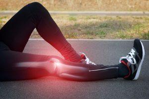 Kniearthrose ohne OP