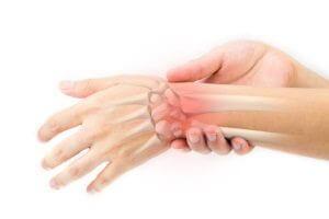 Radiocarpalarthrose - Arthrose im Handgelenk